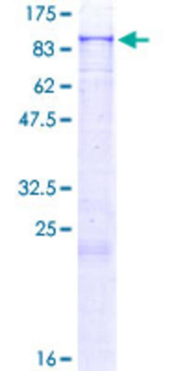 Abnova™Human ZNF624 Full-length ORF (AAI03947.1, 1 a.a. - 739 a.a.) Recombinant Protein with GST-tag at N-terminal 25μg Abnova™Human ZNF624 Full-length ORF (AAI03947.1, 1 a.a. - 739 a.a.) Recombinant Protein with GST-tag at N-terminal