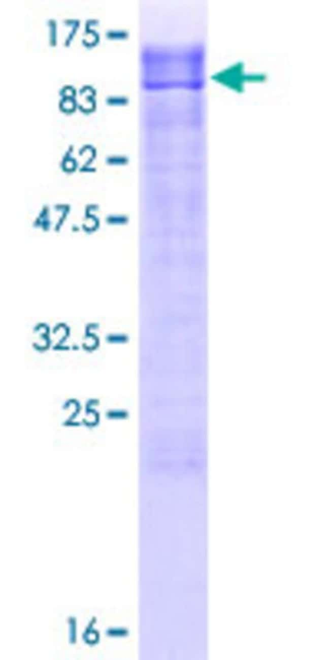 AbnovaHuman SIPA1L2 Full-length ORF (AAH13119.1, 1 a.a. - 532 a.a.) Recombinant