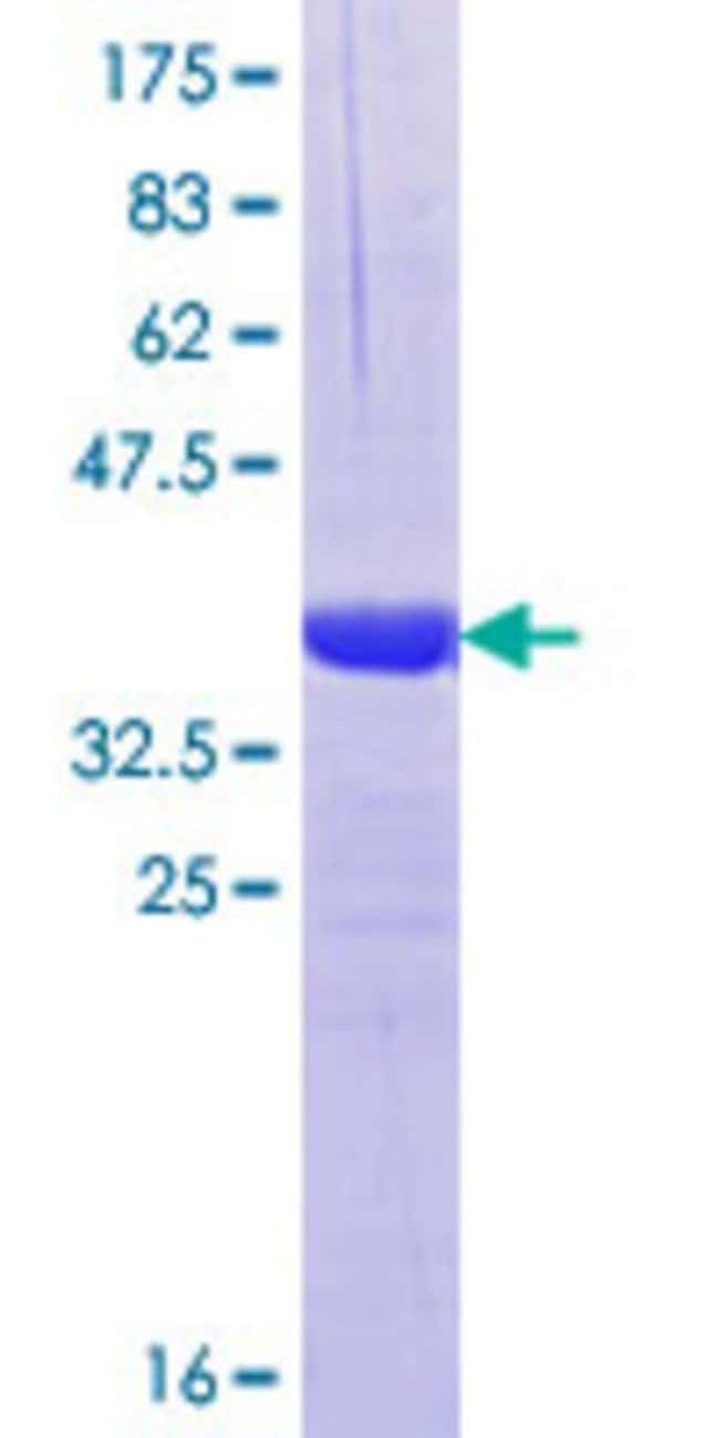 Abnova™Human KIF17 Partial ORF (NP_065867.1, 930 a.a. - 1029 a.a.) Recombinant Protein with GST-tag at N-terminal 25μg Abnova™Human KIF17 Partial ORF (NP_065867.1, 930 a.a. - 1029 a.a.) Recombinant Protein with GST-tag at N-terminal