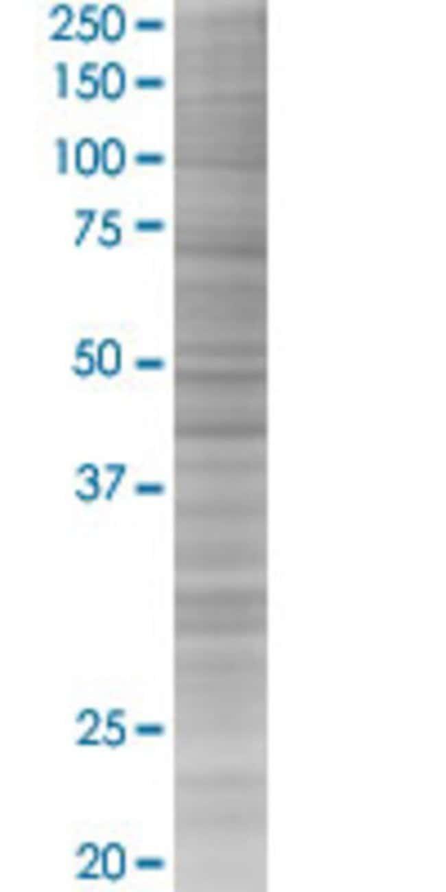 Abnova KIAA1456 293T Cell Transient Overexpression Lysate (Denatured) (T03)