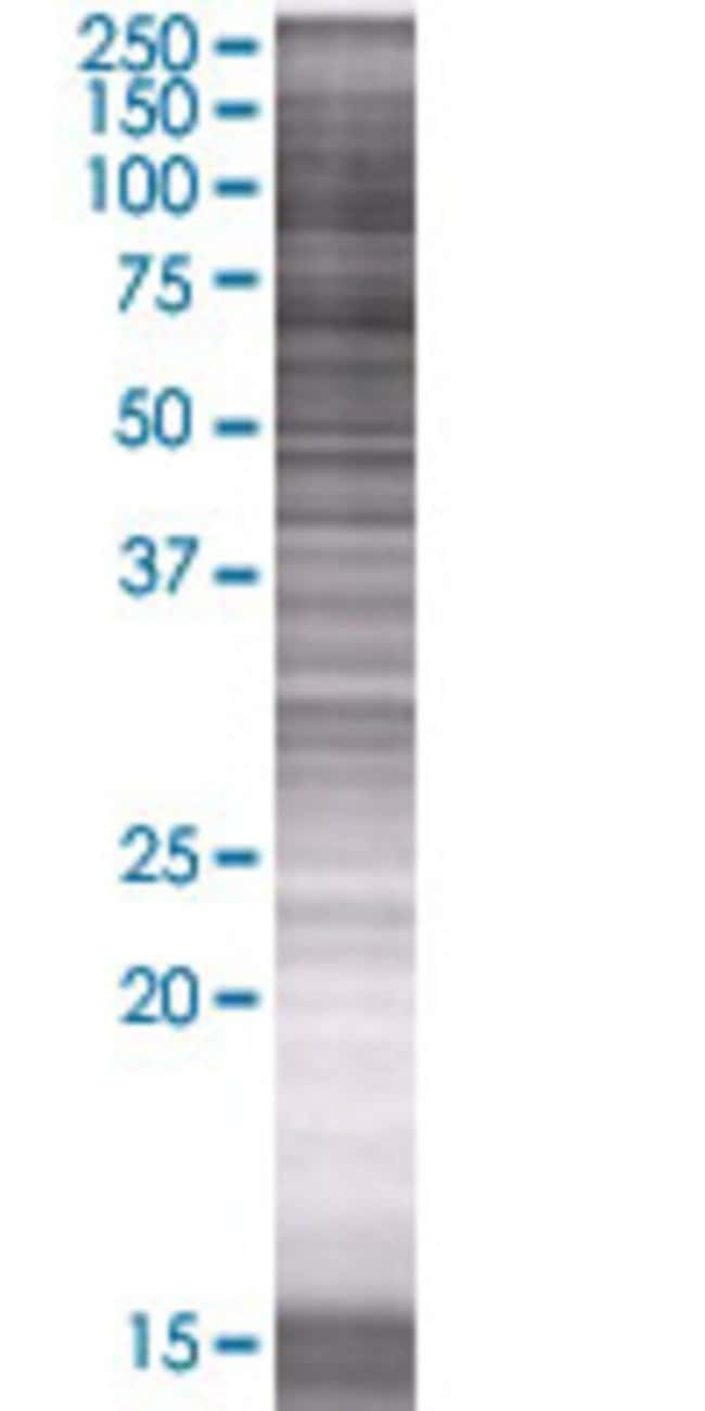 Abnova KIAA1467 293T Cell Transient Overexpression Lysate (Denatured) 100µL:Life