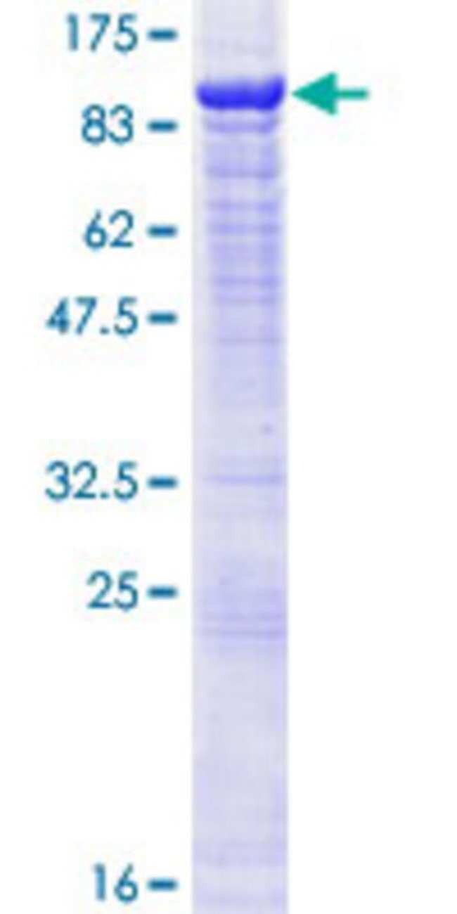 AbnovaHuman POGK Full-length ORF (NP_060012.3, 1 a.a. - 609 a.a.) Recombinant
