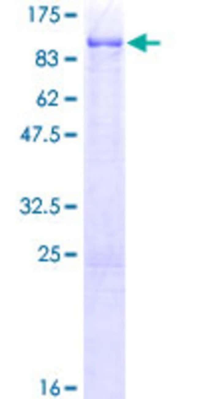 AbnovaHuman USP28 Full-length ORF (AAH65928.1, 1 a.a. - 583 a.a.) Recombinant