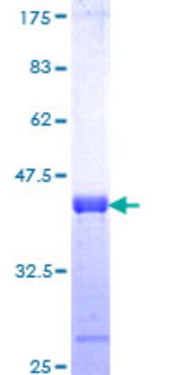 Abnova Human KIAA1542 Partial ORF (NP_065952, 92 a.a. - 189 a.a.) Recombinant