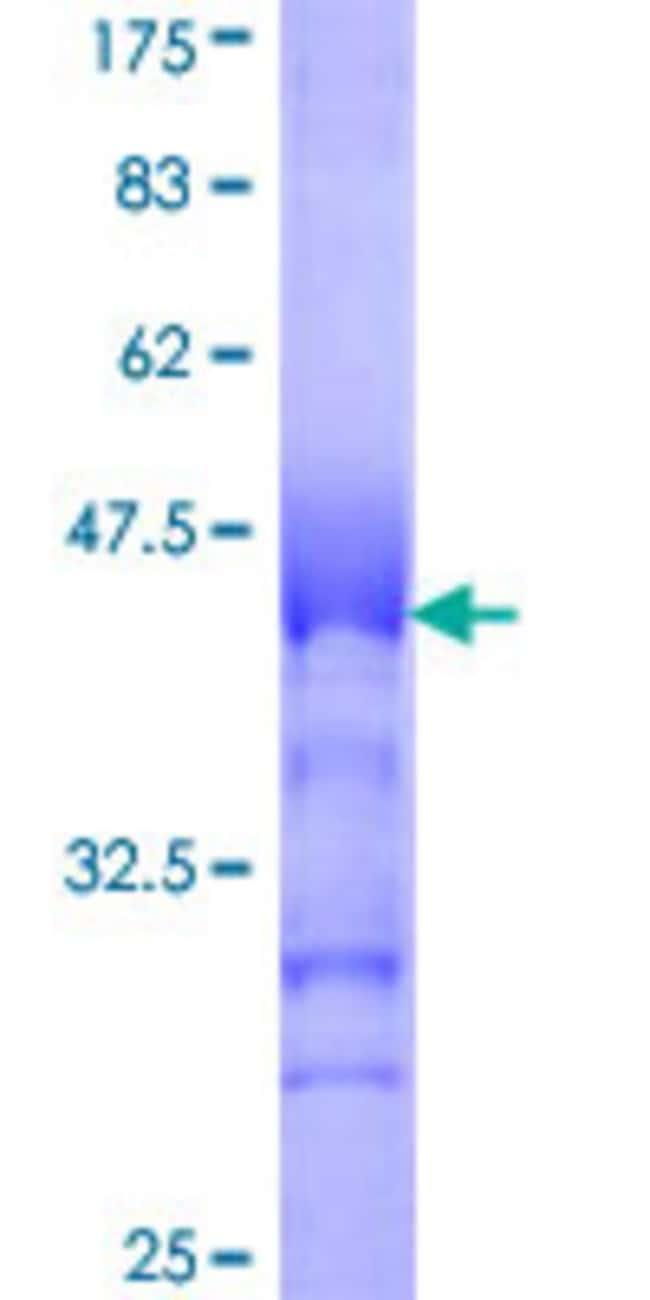 AbnovaHuman USP29 Partial ORF (NP_065954, 131 a.a. - 240 a.a.) Recombinant