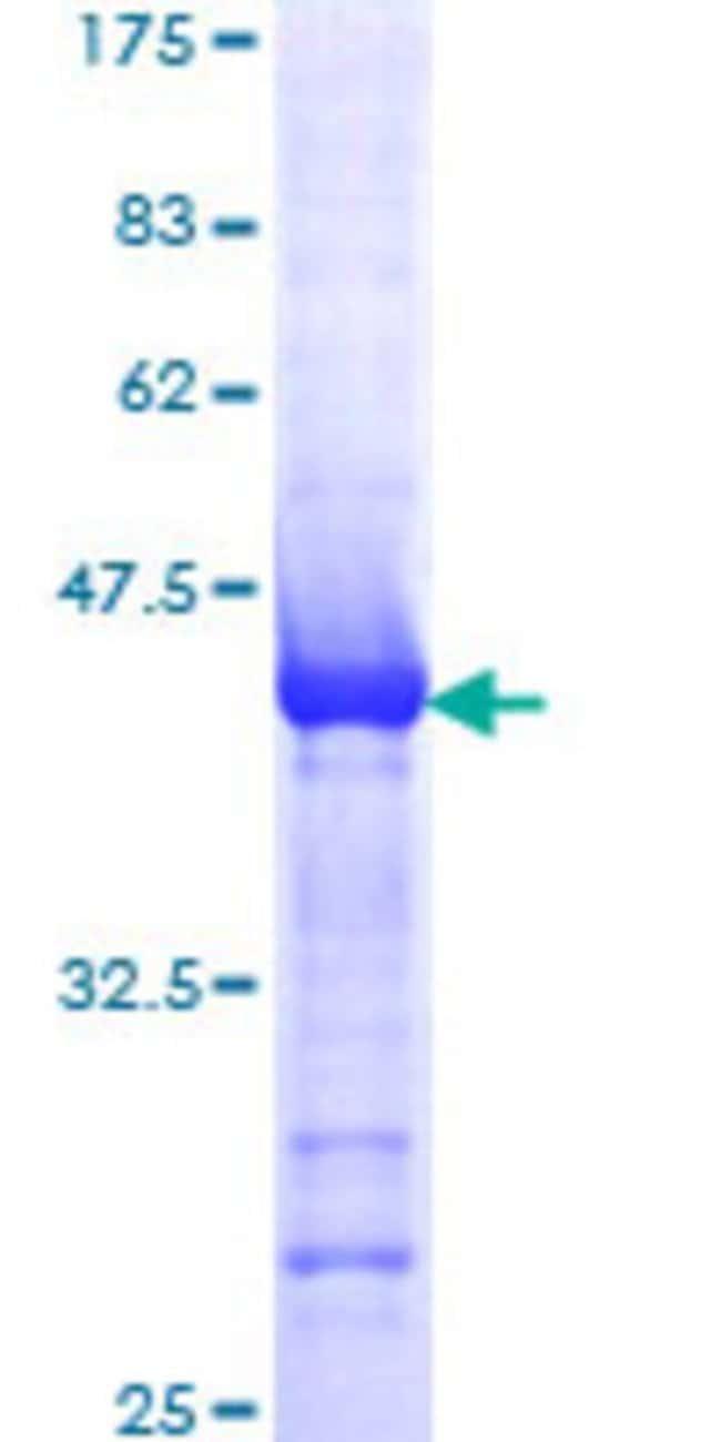 AbnovaHuman ALS2 Partial ORF (AAH29174, 221 a.a. - 320 a.a.) Recombinant