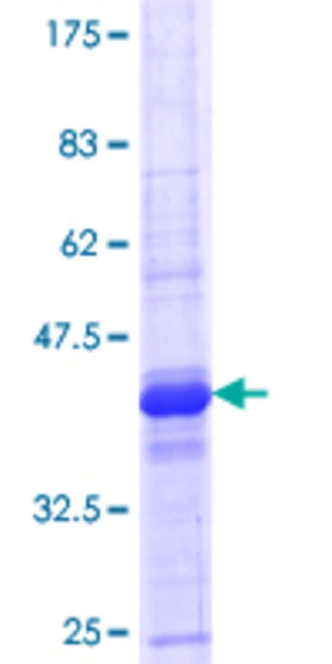 Abnova Human LRRC4C Partial ORF (NP_065980.1, 541 a.a. - 640 a.a.) Recombinant