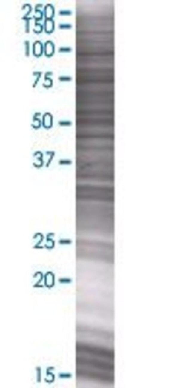 Abnova LRRC4C 293T Cell Transient Overexpression Lysate (Denatured) 100µL:Life
