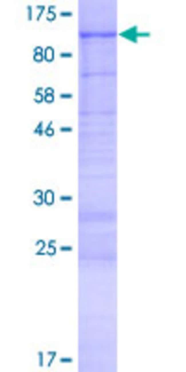 Abnova Human KIAA1586 Full-length ORF (NP_065982.1, 1 a.a. - 787 a.a.)