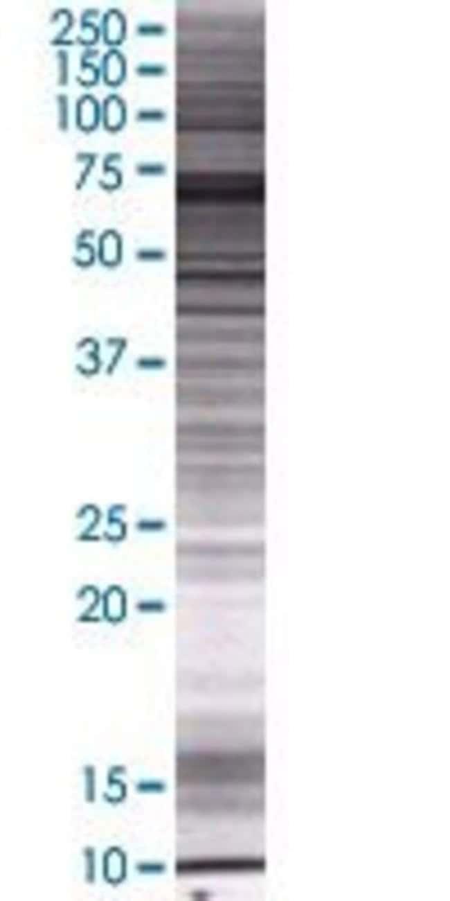 AbnovaZNF317 293T Cell Transient Overexpression Lysate (Denatured) 100μL:Protein