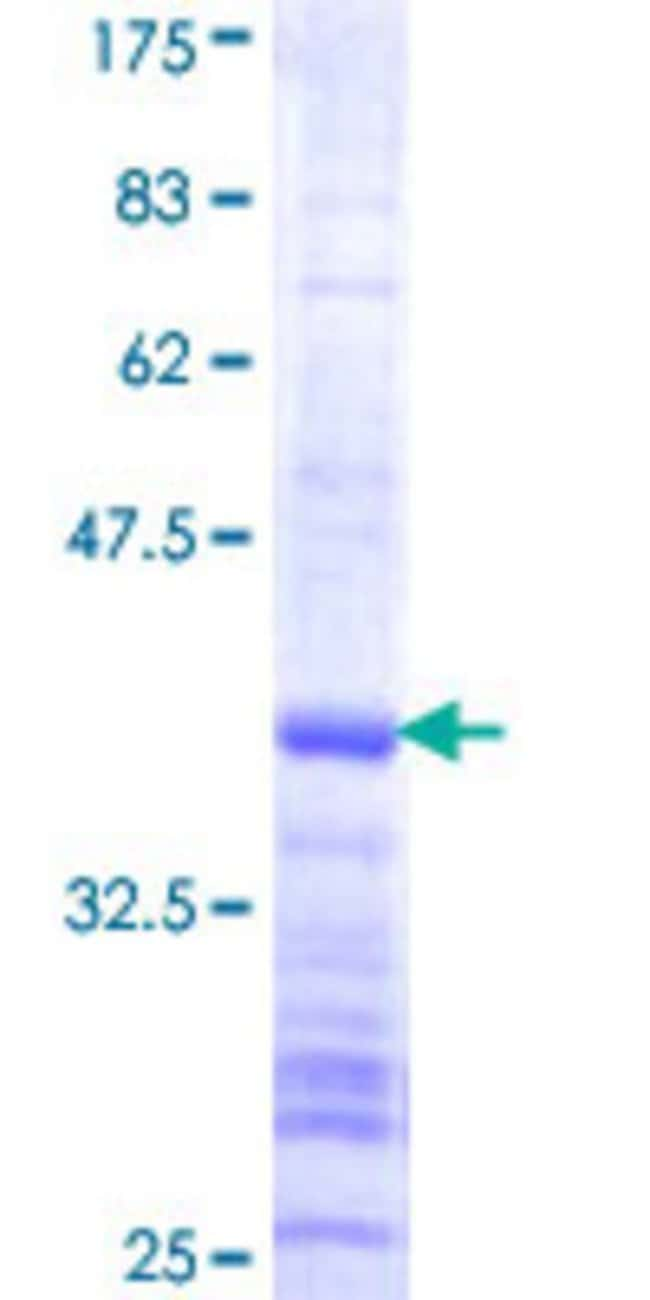 Abnova™ Human USP37 Partial ORF (NP_065986, 123 a.a. - 228 a.a.) Recombinant Protein with GST-tag at N-terminal 10μg Abnova™ Human USP37 Partial ORF (NP_065986, 123 a.a. - 228 a.a.) Recombinant Protein with GST-tag at N-terminal