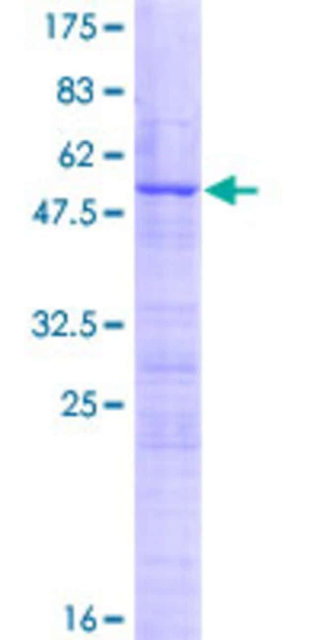 Abnova™ Human DDX55 Full-length ORF (AAH35911.1, 1 a.a. - 207 a.a.) Recombinant Protein with GST-tag at N-terminal 25μg Abnova™ Human DDX55 Full-length ORF (AAH35911.1, 1 a.a. - 207 a.a.) Recombinant Protein with GST-tag at N-terminal