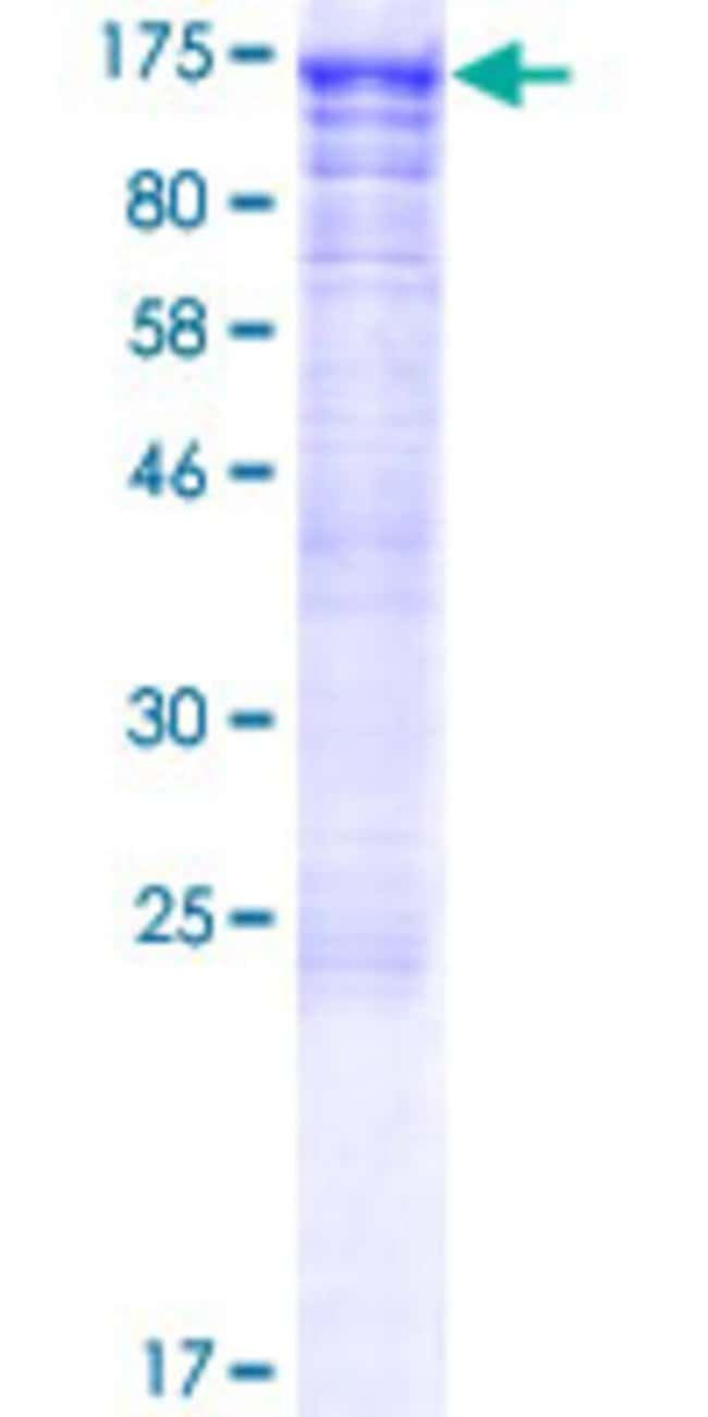 Abnova™Human KIAA1604 Full-length ORF (AAH93952.1, 1 a.a. - 908 a.a.) Recombinant Protein with GST-tag at N-terminal 10μg Abnova™Human KIAA1604 Full-length ORF (AAH93952.1, 1 a.a. - 908 a.a.) Recombinant Protein with GST-tag at N-terminal