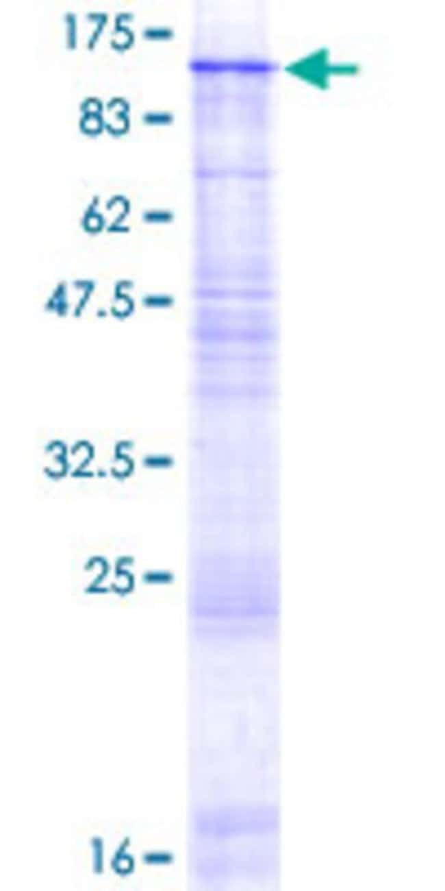 Abnova™ Human GBA2 Full-length ORF (NP_065995.1, 1 a.a. - 927 a.a.) Recombinant Protein with GST-tag at N-terminal 10μg Abnova™ Human GBA2 Full-length ORF (NP_065995.1, 1 a.a. - 927 a.a.) Recombinant Protein with GST-tag at N-terminal