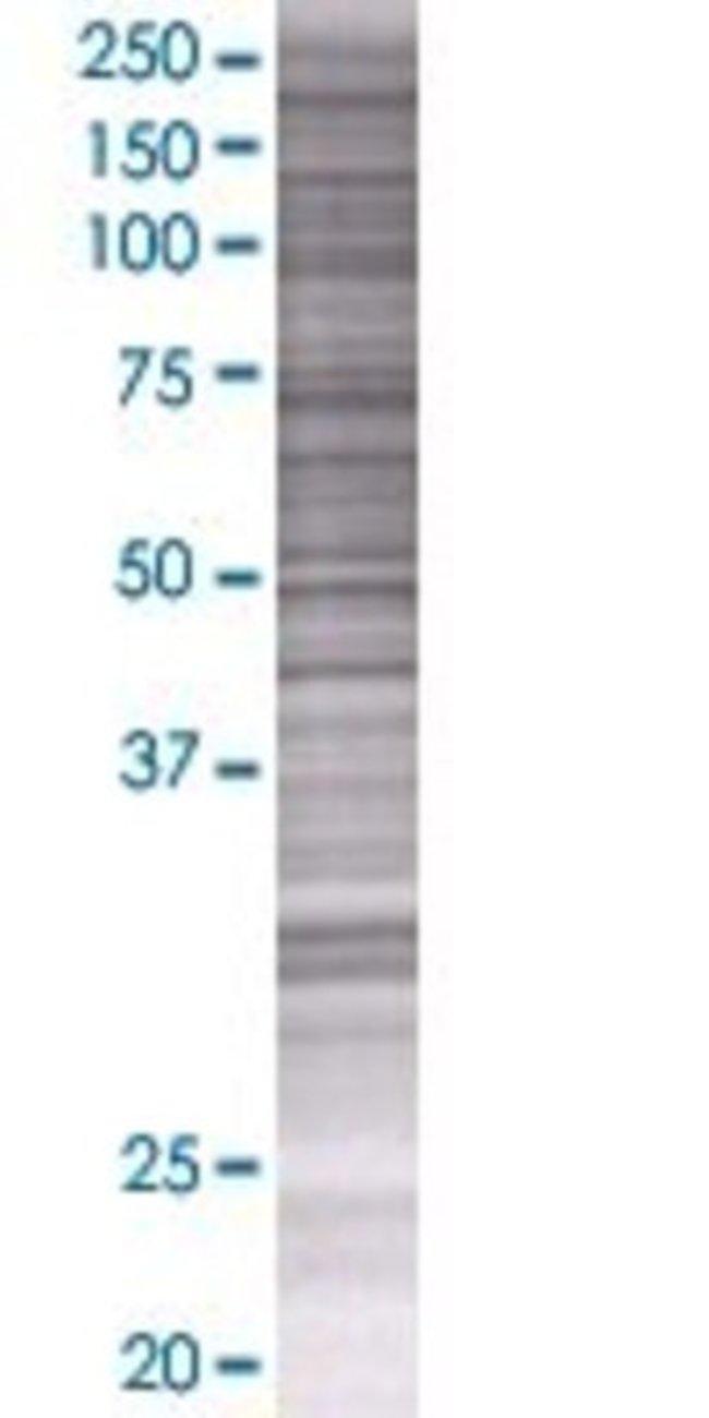 Abnova KIAA1618 293T Cell Transient Overexpression Lysate (Denatured) 100µL:Life