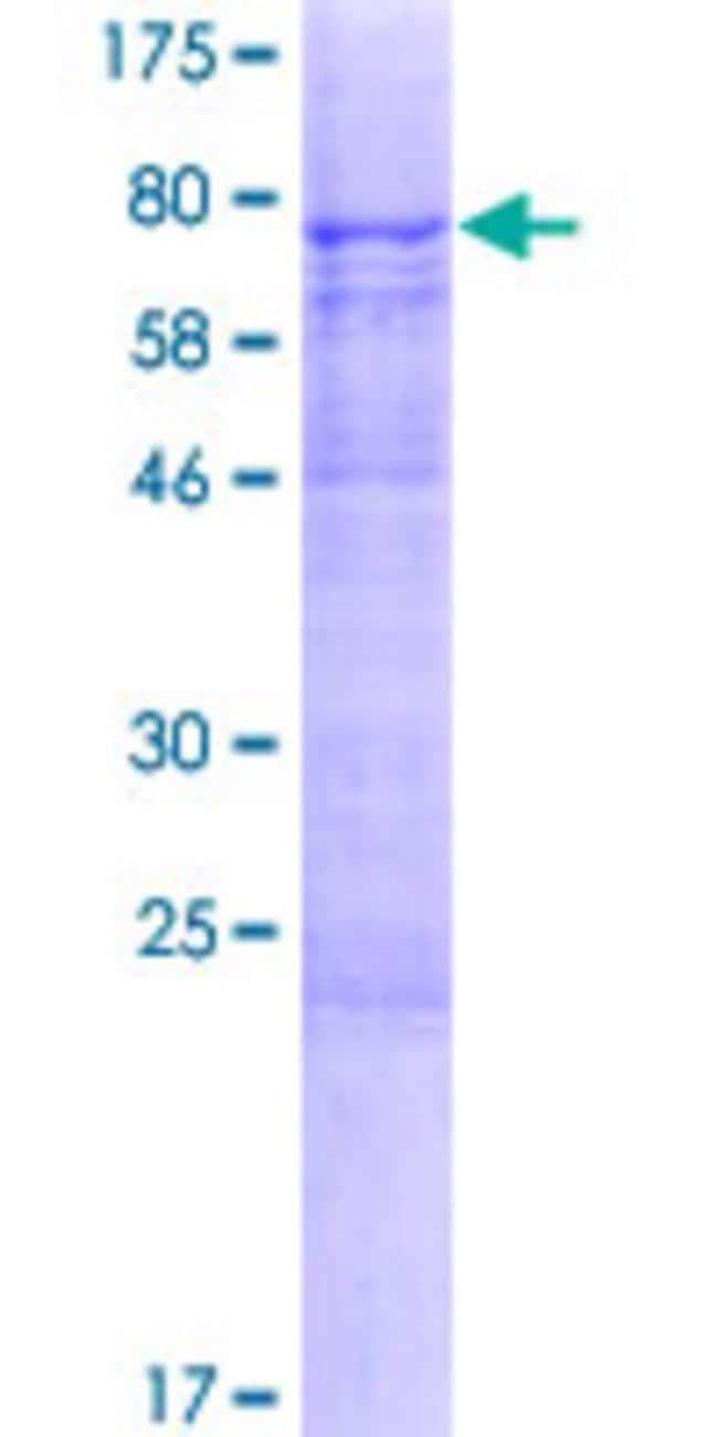 Abnova Human KIAA1627 Full-length ORF (NP_066012.1, 1 a.a. - 456 a.a.)