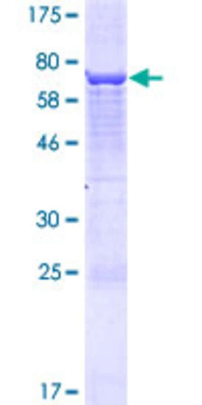 AbnovaHuman EPG5 Full-length ORF (AAH36911.1, 1 a.a. - 464 a.a.) Recombinant