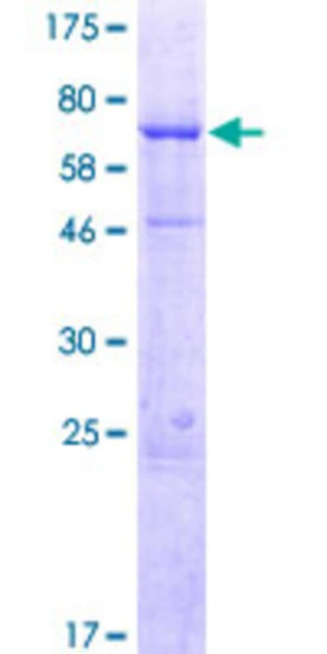 AbnovaHuman WDR19 Full-length ORF (AAH32578.1, 1 a.a. - 437 a.a.) Recombinant
