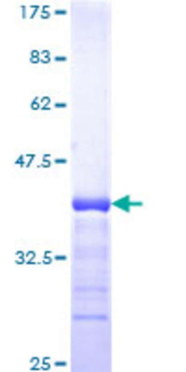 AbnovaHuman RBAK Partial ORF (NP_066986, 51 a.a. - 150 a.a.) Recombinant