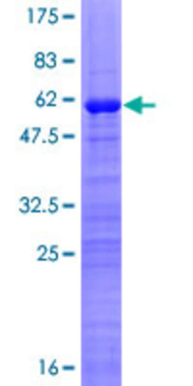 AbnovaHuman GATAD1 Full-length ORF (NP_066990.3, 1 a.a. - 269 a.a.) Recombinant
