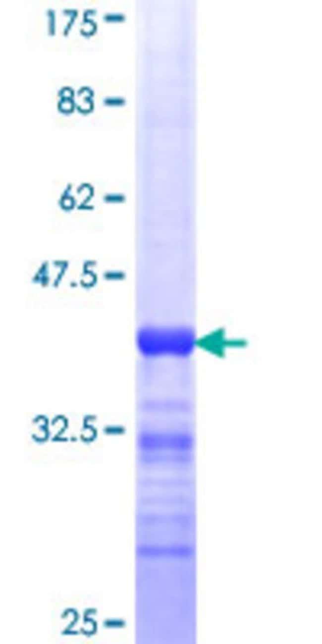 Abnova™Human GRHL3 Partial ORF (NP_067003, 101 a.a. - 200 a.a.) Recombinant Protein with GST-tag at N-terminal 10μg Abnova™Human GRHL3 Partial ORF (NP_067003, 101 a.a. - 200 a.a.) Recombinant Protein with GST-tag at N-terminal