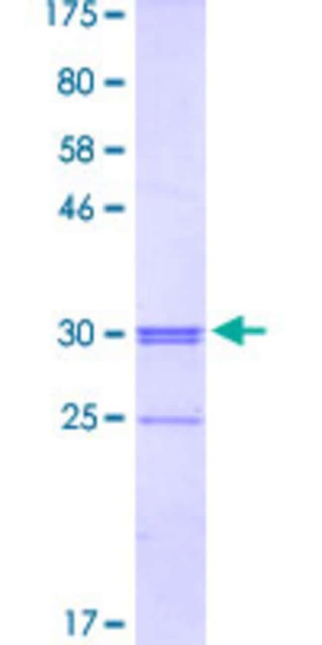 AbnovaHuman SLC46A2 Partial ORF (NP_149040, 227 a.a. - 282 a.a.) Recombinant