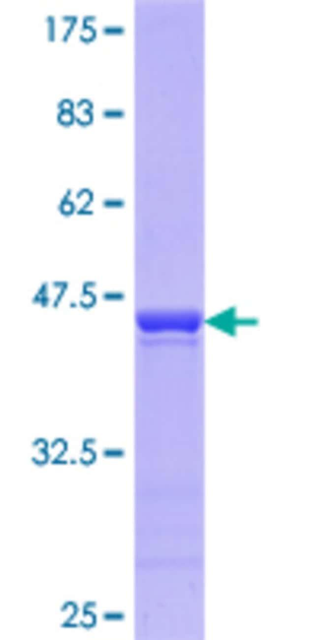 Abnova Human PTBP2 Partial ORF (AAH16582.1, 35 a.a. - 175 a.a.) Recombinant