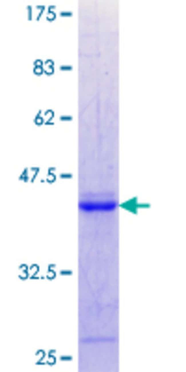 AbnovaHuman WFDC1 Partial ORF (NP_067020.2, 121 a.a. - 220 a.a.) Recombinant