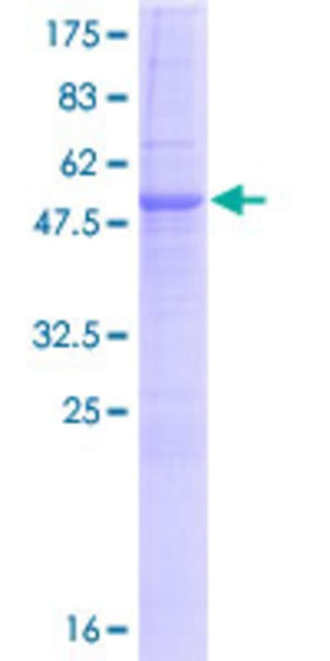 AbnovaHuman SRPRB Full-length ORF (NP_067026.2, 1 a.a. - 271 a.a.) Recombinant