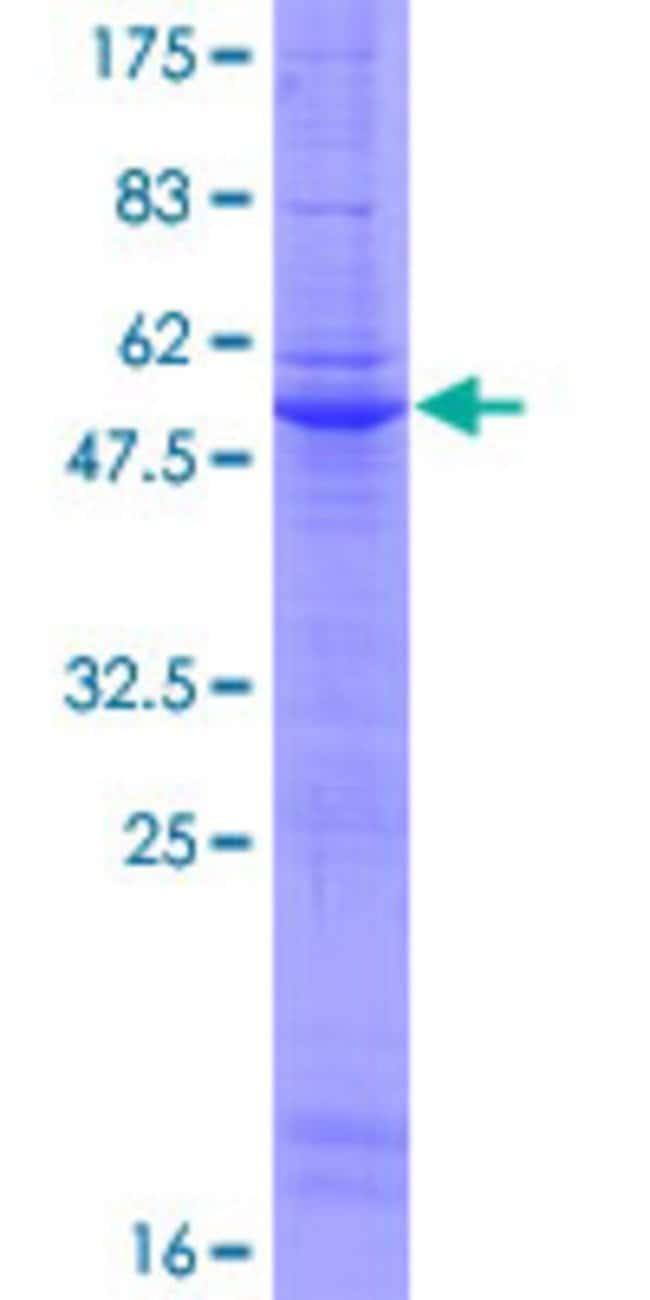 Abnova Human LY6G5B Full-length ORF (NP_067044.2, 1 a.a. - 201 a.a.) Recombinant