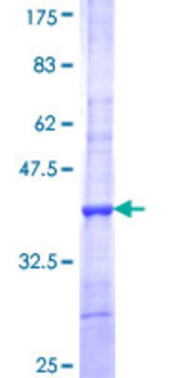 AbnovaHuman DNASE2B Partial ORF (NP_067056, 258 a.a. - 357 a.a.) Recombinant