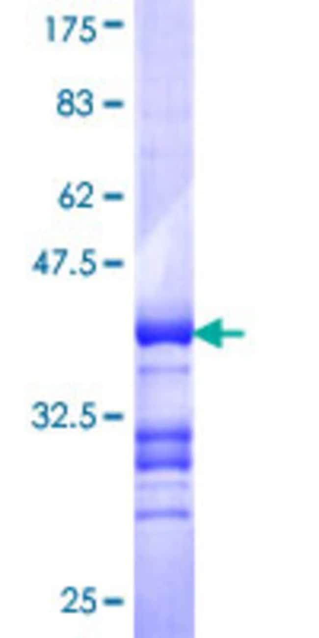 AbnovaHuman DMRT3 Partial ORF (NP_067063, 375 a.a. - 472 a.a.) Recombinant
