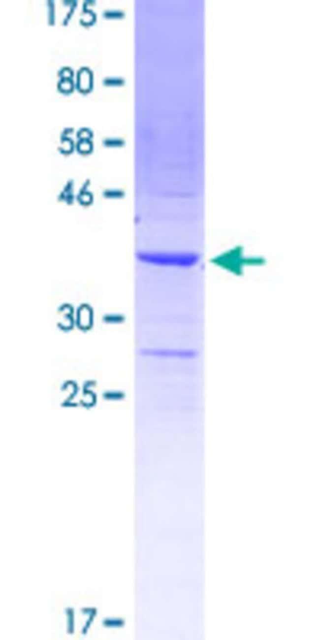 AbnovaHuman MYOZ1 Partial ORF (NP_067068.1, 200 a.a. - 298 a.a.) Recombinant