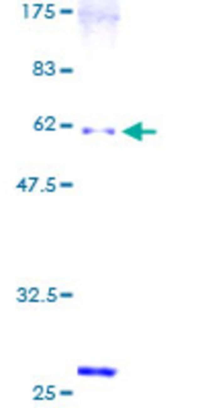AbnovaHuman SNX6 Full-length ORF (AAH01798, 1 a.a. - 290 a.a.) Recombinant
