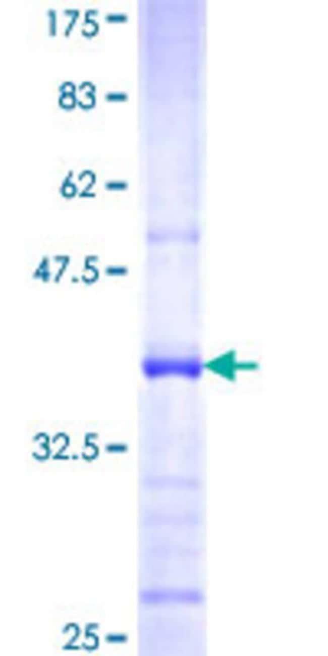 Abnova Human IL22RA1 Partial ORF (NP_067081, 1 a.a. - 110 a.a.) Recombinant