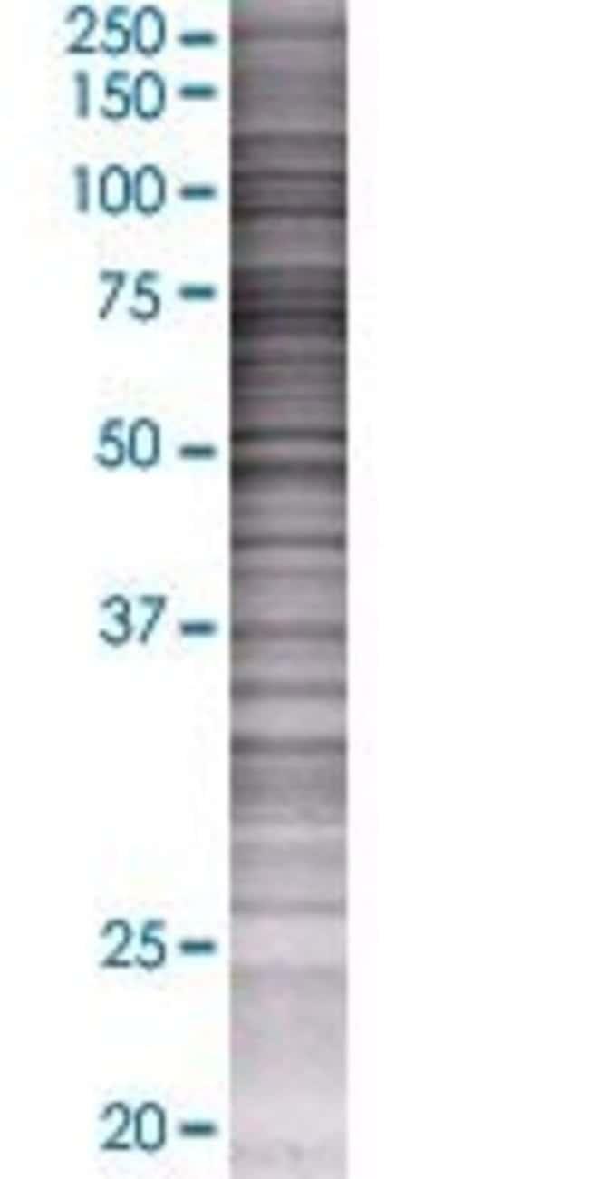Abnova IL22RA1 293T Cell Transient Overexpression Lysate (Denatured) 100µL:Life