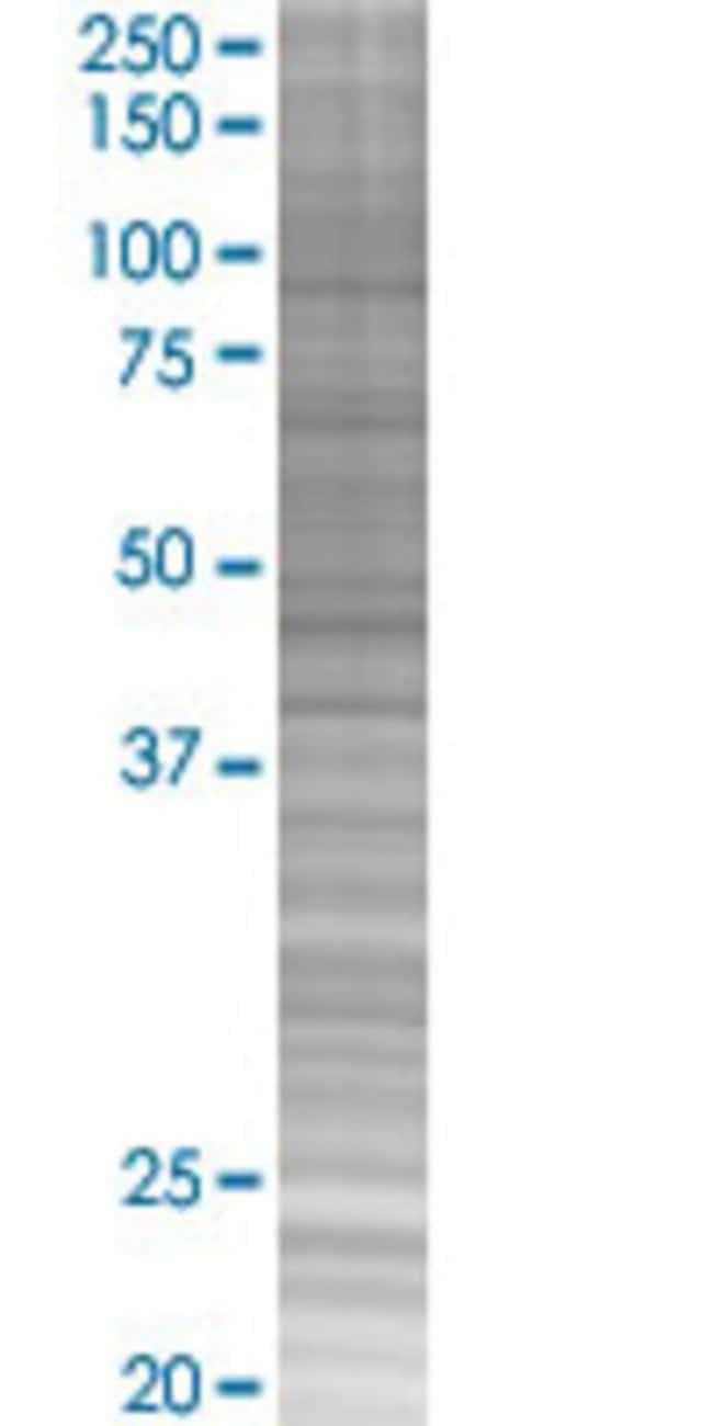 Abnova IL21 293T Cell Transient Overexpression Lysate (Denatured) 100µL:Life