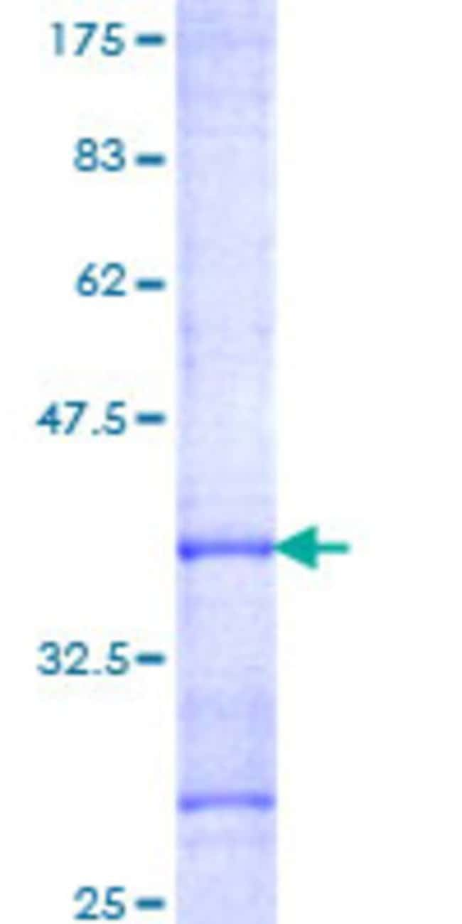 AbnovaHuman ICEBERG Partial ORF (NP_067546, 1 a.a. - 90 a.a.) Recombinant