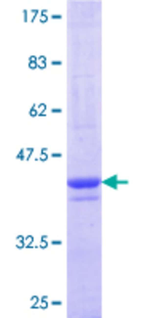 AbnovaHuman PLEKHA1 Partial ORF (NP_001001974.1, 118 a.a. - 216 a.a.) Recombinant