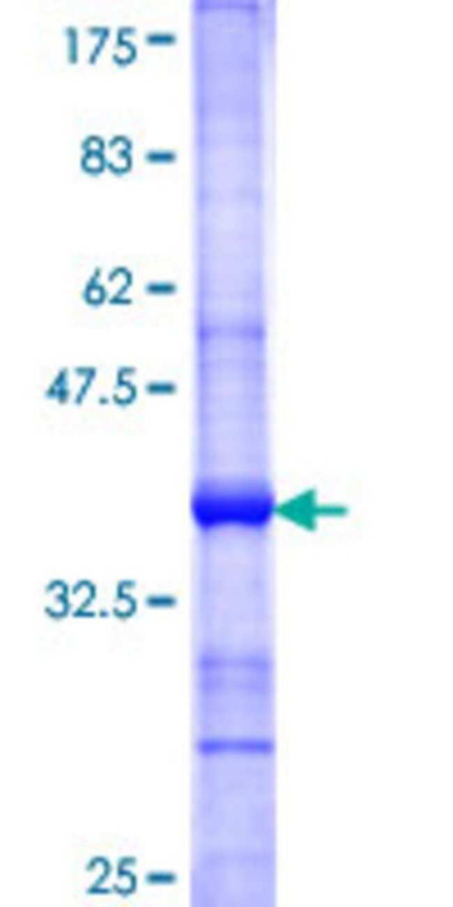 AbnovaHuman ALOXE3 Partial ORF (NP_067641, 1 a.a. - 97 a.a.) Recombinant