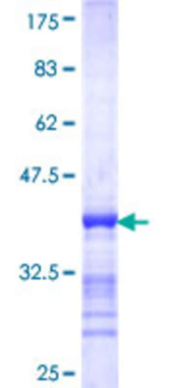Abnova™Human TSKS Partial ORF (NP_068379, 471 a.a. - 560 a.a.) Recombinant Protein with GST-tag at N-terminal 25μg Abnova™Human TSKS Partial ORF (NP_068379, 471 a.a. - 560 a.a.) Recombinant Protein with GST-tag at N-terminal