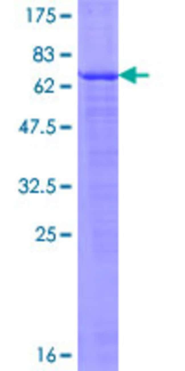 AbnovaHuman EDA2R Full-length ORF (NP_068555.1, 1 a.a. - 297 a.a.) Recombinant