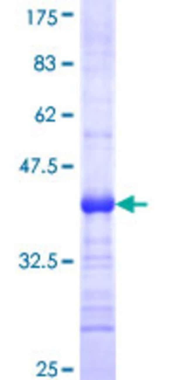 AbnovaHuman EDA2R Partial ORF (NP_068555, 1 a.a. - 110 a.a.) Recombinant