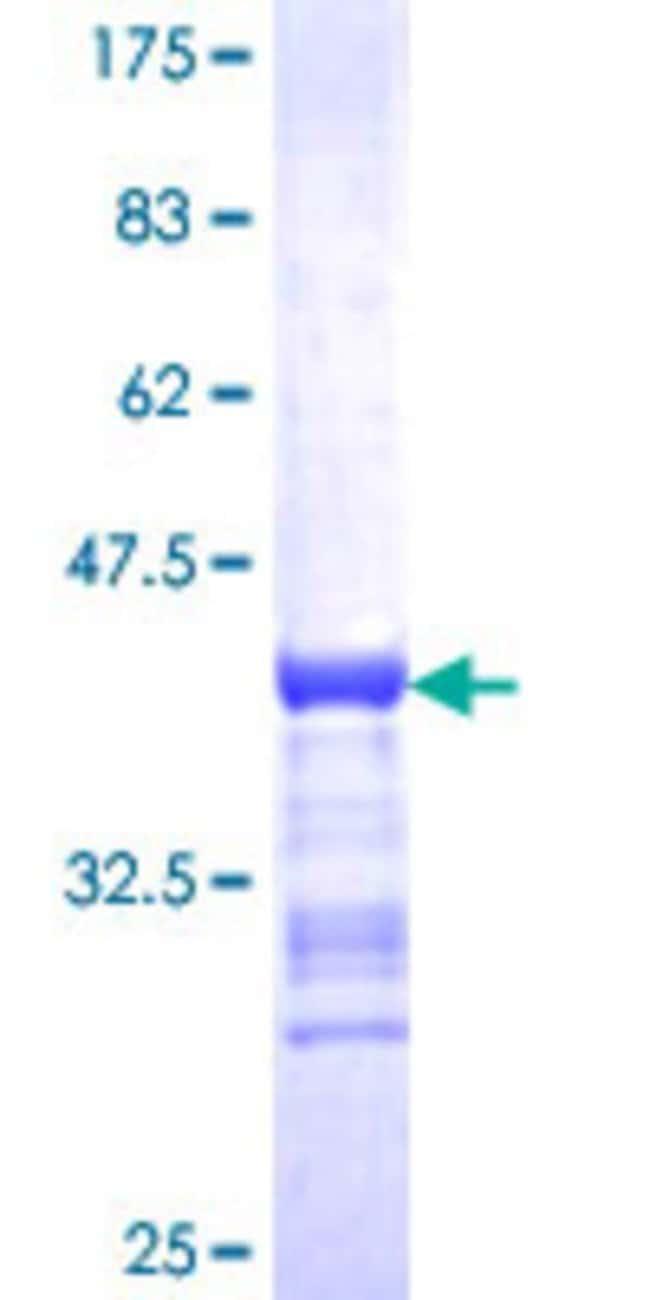 AbnovaHuman BACH2 Partial ORF (NP_068585, 679 a.a. - 770 a.a.) Recombinant