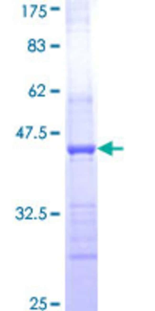 AbnovaHuman HAPLN2 Partial ORF (NP_068589, 31 a.a. - 142 a.a.) Recombinant