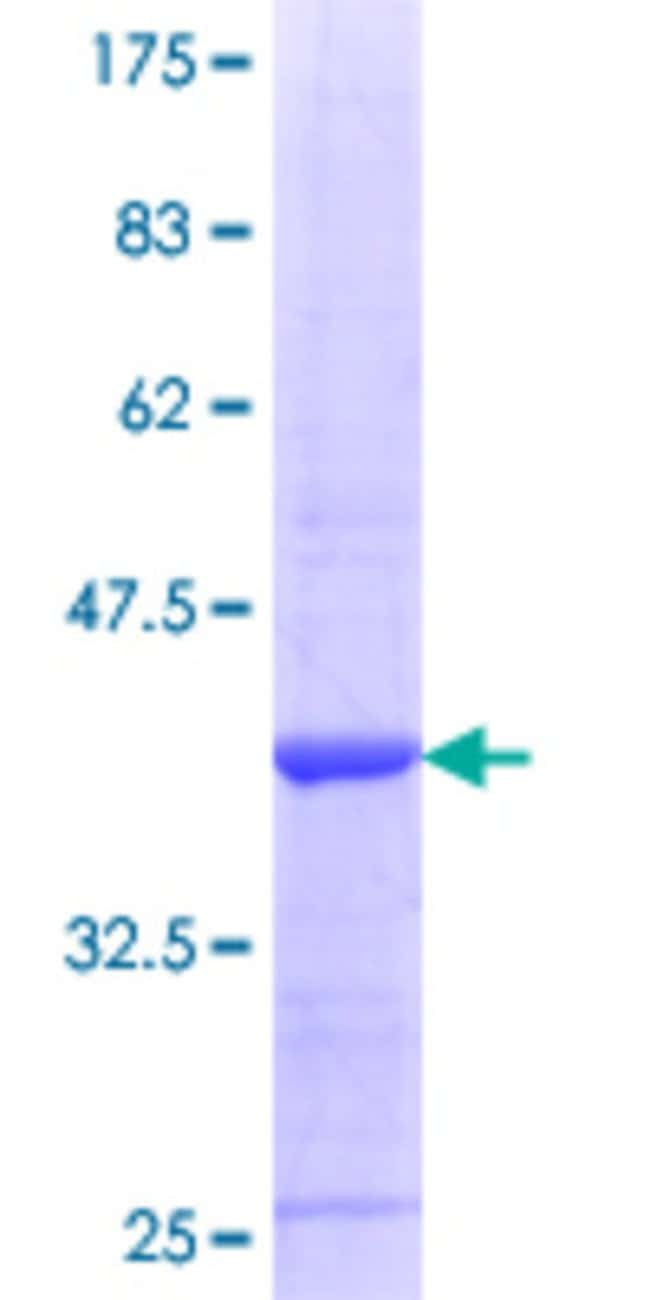 AbnovaHuman SRR Partial ORF (NP_068766.1, 1 a.a. - 100 a.a.) Recombinant