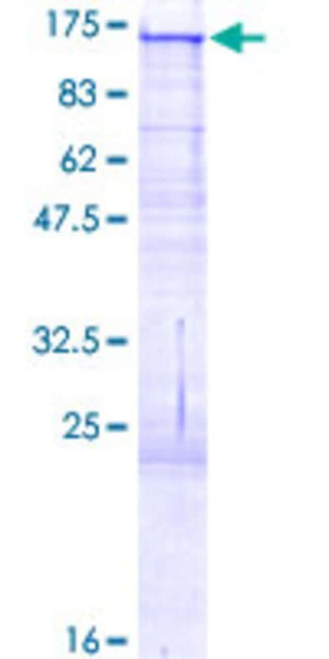 AbnovaHuman BCAN Full-length ORF (AAH09117.1, 1 a.a. - 911 a.a.) Recombinant