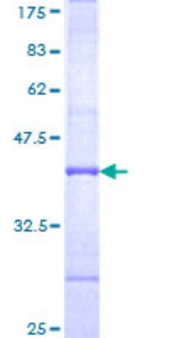 AbnovaHuman BCAN Partial ORF (NP_068767, 63 a.a. - 162 a.a.) Recombinant