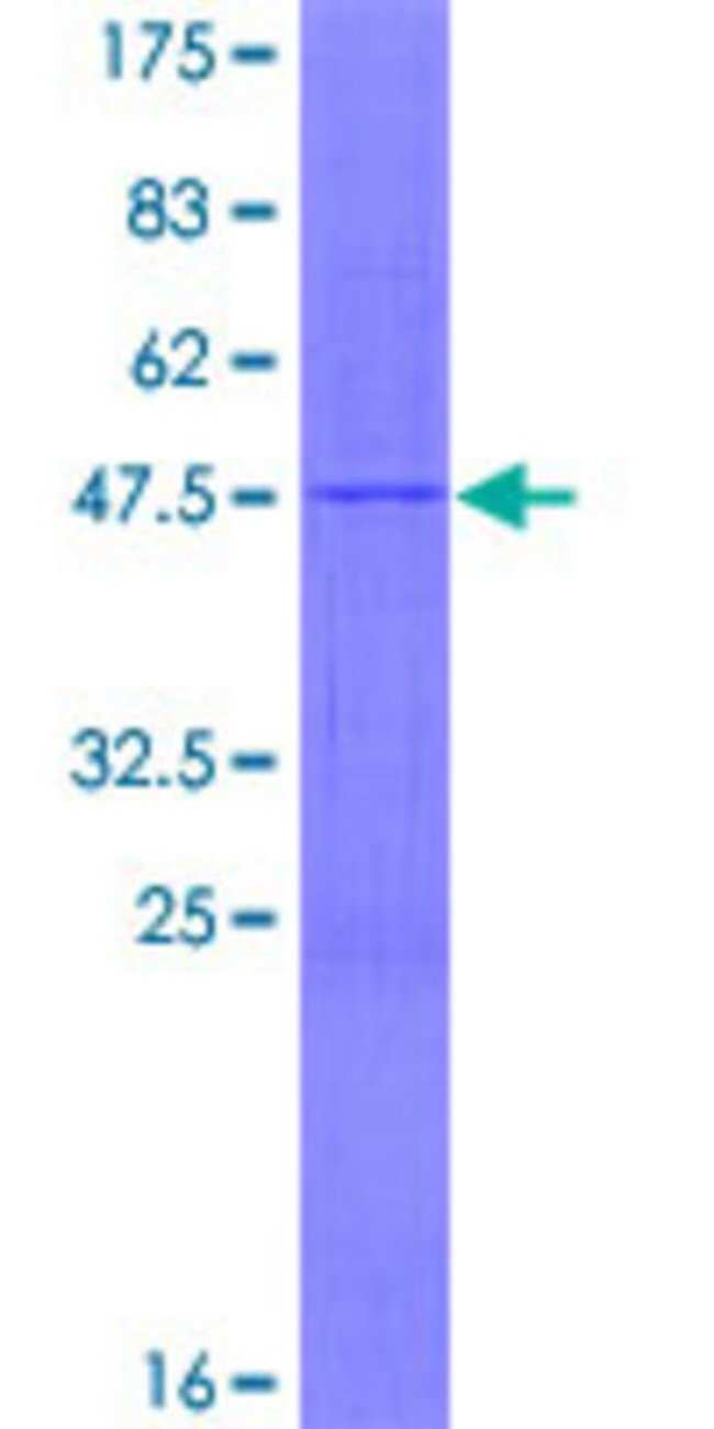 AbnovaHuman MRPL17 Full-length ORF (NP_071344.1, 1 a.a. - 175 a.a.) Recombinant