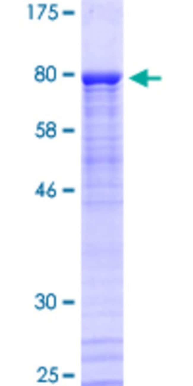 AbnovaHuman PKNOX2 Full-length ORF (AAH45626.3, 1 a.a. - 471 a.a.) Recombinant